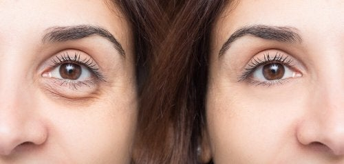Donna con occhiaie