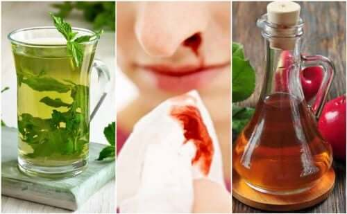 Sangue dal naso: 5 rimedi naturali
