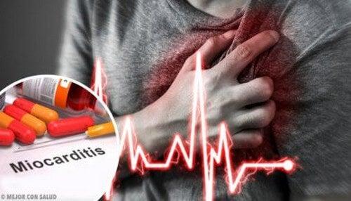 Miocardite: definizione e criteri diagnostici