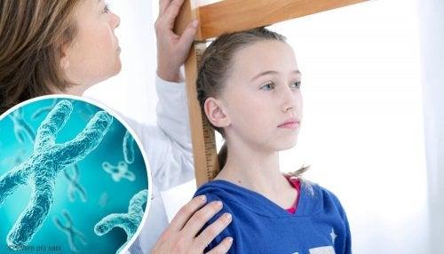La sindrome di Turner: sintomi e trattamento