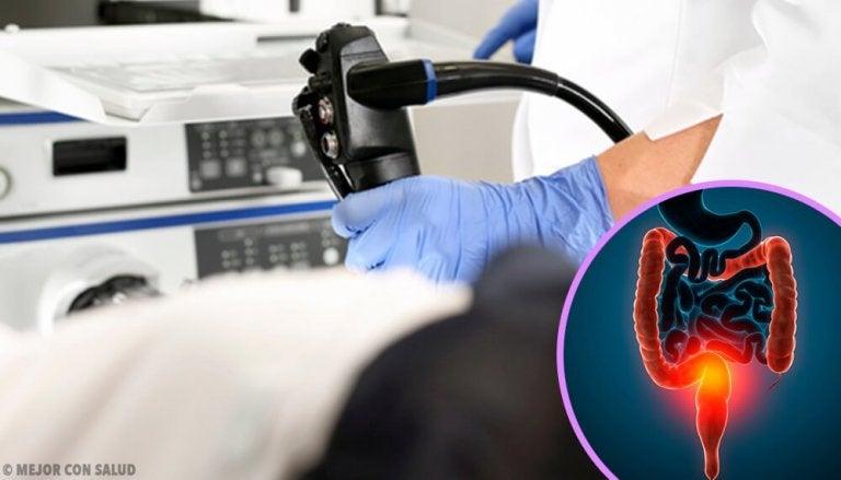 Trattamento del tumore del colon-retto