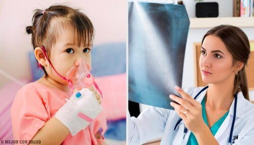 Polmonite: tipologie e terapie