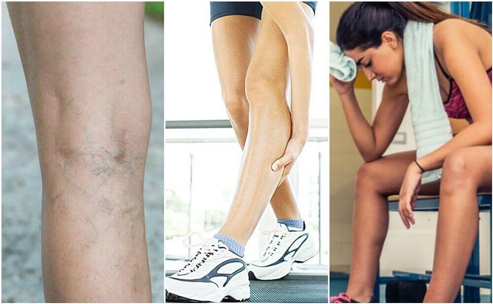 Crampi muscolari: possibili cause