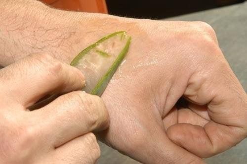 Aloe vera e le scottature