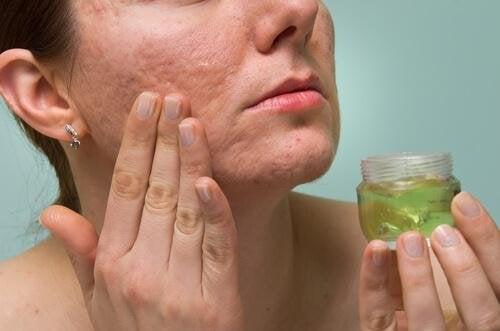 Aloe vera per la cura della pelle