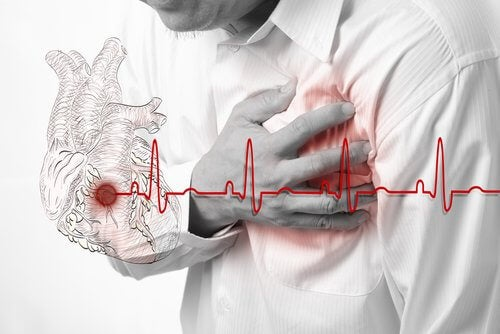 Infarto miocardico acuto: di cosa si tratta?