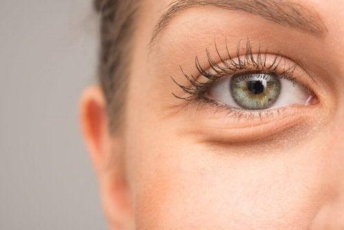 7 motivi per cui gli occhi possono gonfiarsi