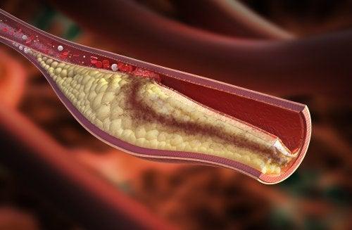 Colesterolo nelle arterie