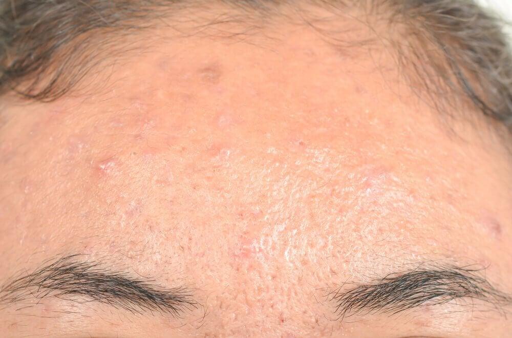 Dermatite seborroica: efficaci rimedi naturali