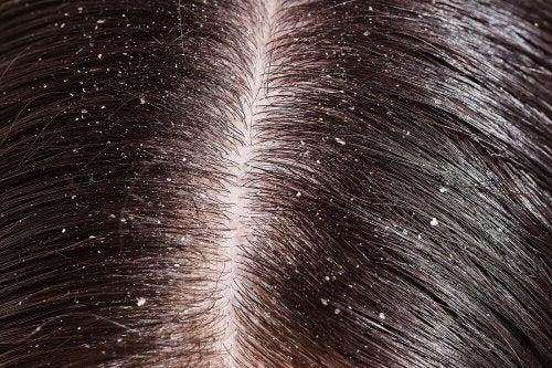 capelli e forfora