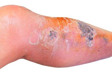 Erisipela: gamba colpita da infezione batterica.