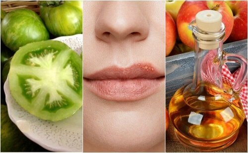 Combattere l'herpes labiale con 5 trattamenti naturali