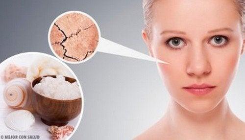 5 rimedi naturali per la pelle secca