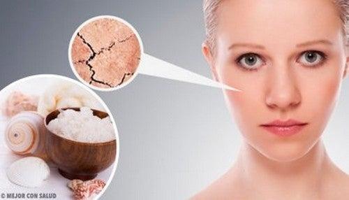 Migliori rimedi naturali per la pelle secca