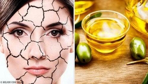 Secchezza cutanea: i trattamenti naturali più indicati
