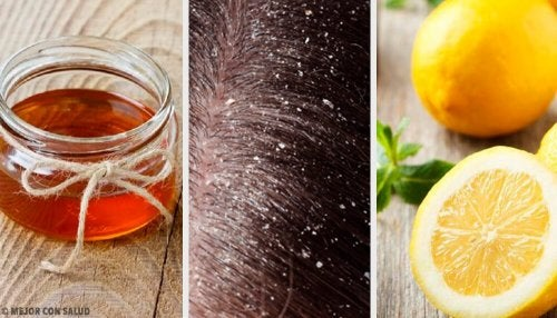 10 rimedi naturali efficaci contro la forfora