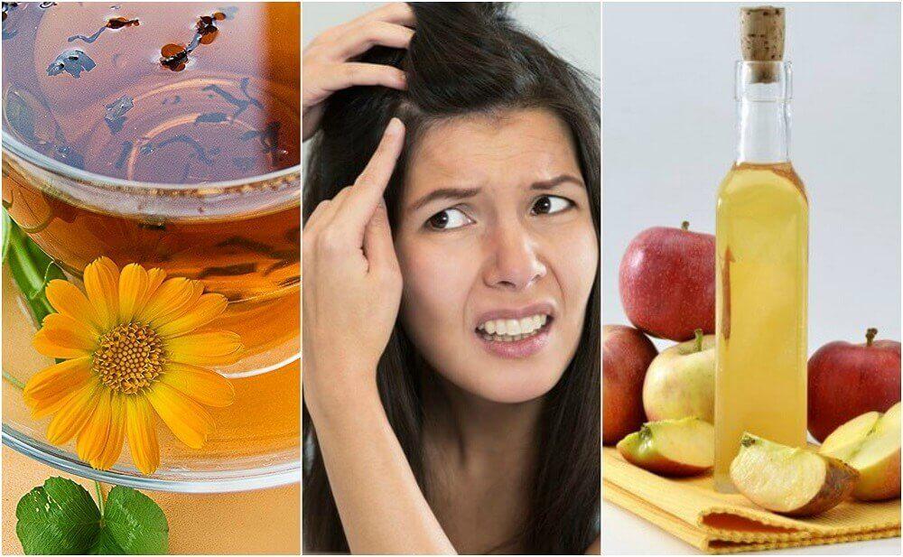 Cuoio capelluto sensibile: rimedi naturali