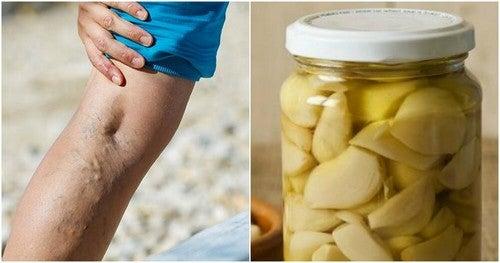 Pomata all'aglio e limone per le varici