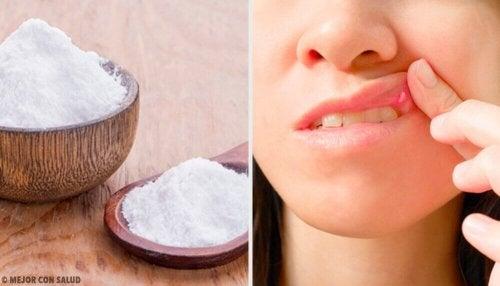 Lesioni della bocca: 8 rimedi