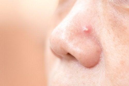Eliminare i brufoli sul naso con 4 rimedi naturali