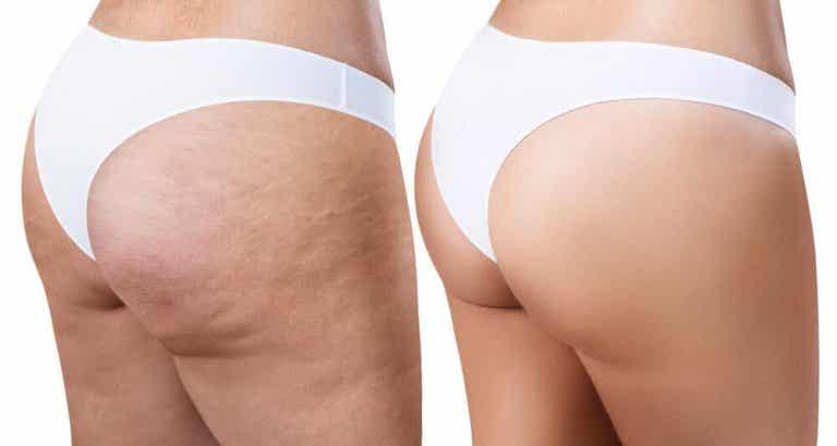 Eliminare la cellulite con rimedi efficaci