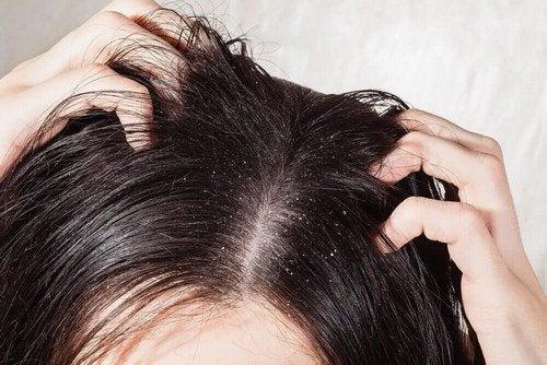 Micosi del cuoio capelluto: 6 rimedi naturali