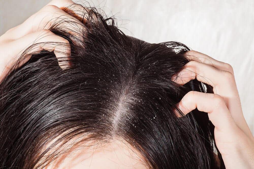 Micosi del cuoio capelluto  6 rimedi naturali - Vivere più sani 8b4042ac0bd2