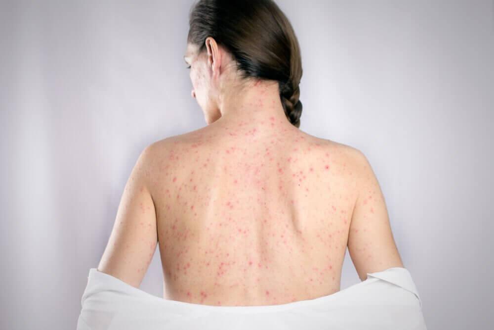 Herpes sulla schiena: i 5 rimedi migliori