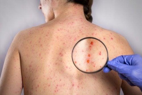 Combattere l'herpes sulla schiena