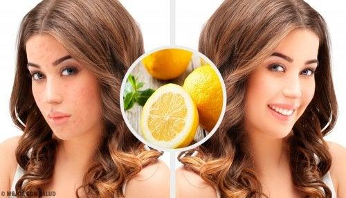 4 rimedi naturali per eliminare le cicatrici dell'acne