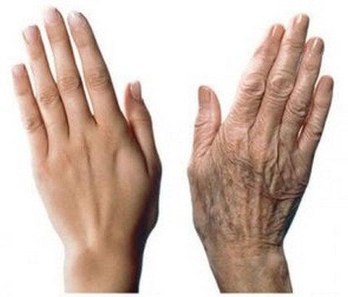 Invecchiamento delle mani: 7 consigli di bellezza