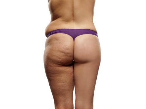 Ridurre la cellulite: ecco la dieta da seguire