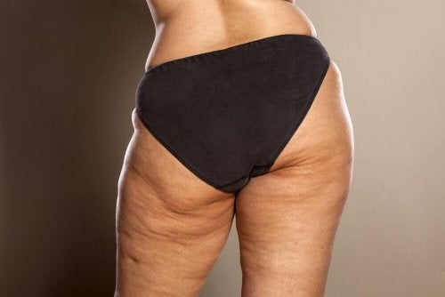 Donna con cellulite sui glutei