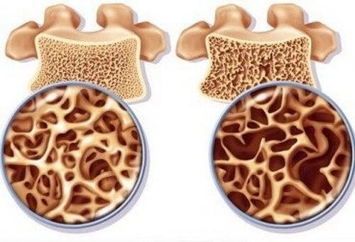 Come preparare un rimedio ricco di calcio per prevenire l'osteoporosi
