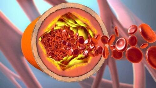 l'acqua di scagliola e cannella è un ottimo rimedio per pulire le arterie