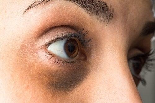 donna con occhiaie scure