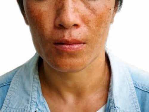 Attenuare un melasma: 3 trattamenti per ridurre le macchie