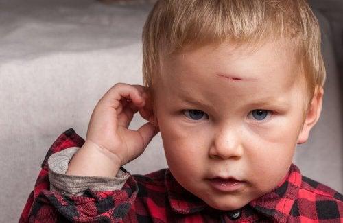 Bimbo con ferita alla testa