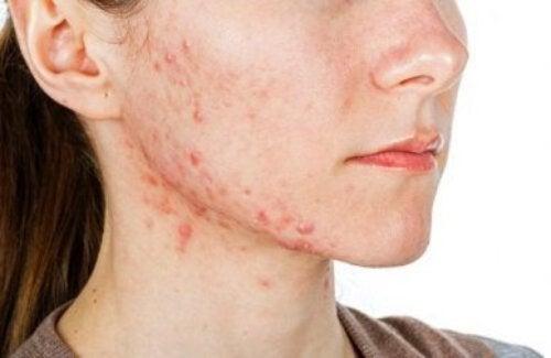 Combattere l'acne dall'interno: 6 tisane naturali