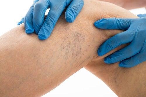 8 regole per curare le vene varicose