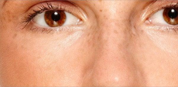 Foto ravvicinata della zona circostante gli occhi con macchie