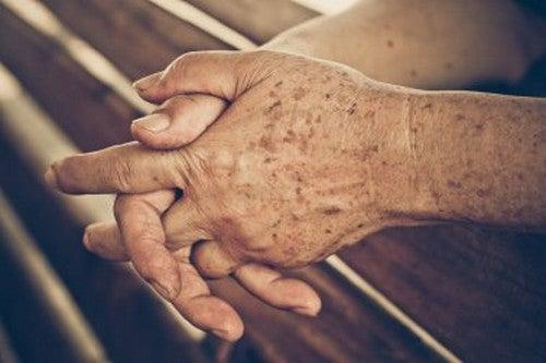 Macchie dell'età: i migliori rimedi naturali