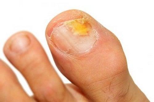 Oli essenziali contro l'onicomicosi di piedi e mani