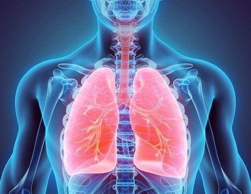 Bronchiectasia: trattamenti naturali per combatterla