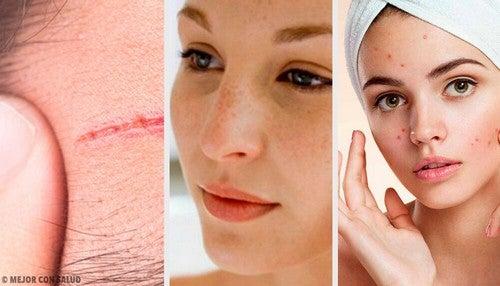 Trattare i 4 problemi più frequenti del viso
