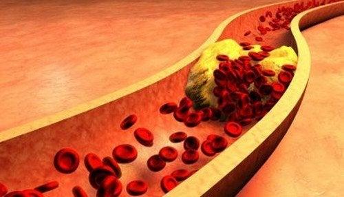 Acqua di scagliola e cannella: rimedio per pulire le arterie