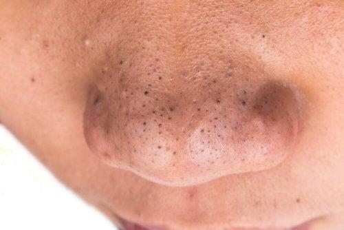 Punti neri sul naso
