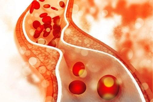 Colesterolo elevato nelle arterie