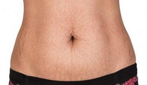 Trattamenti naturali per combattere le smagliature della pelle