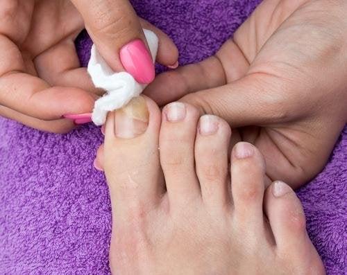 Estetista esegue trattamento su unghie dei piedi